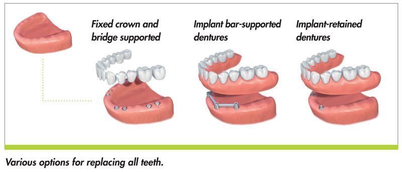 Implants - Denture Clinic Calgary SE