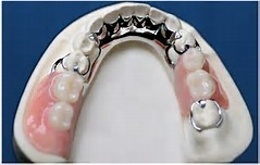 Partial Dentures Calgary SE