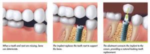 dental implant dentist calgary se - implant process