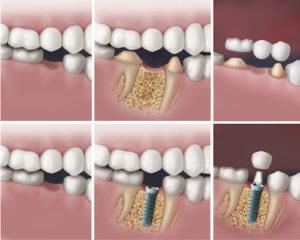 Dental Restorations Calgary - dental implant process