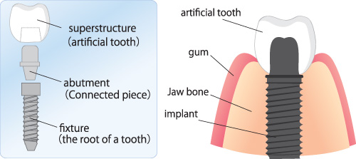 calgary dental implants - illustration of implant components