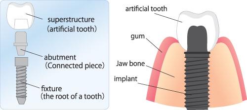 calgary dental implants - illustration of implant components