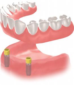 dental implant calgary se - implanted screws